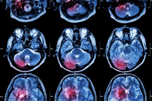 NY Physical Therapy & Wellness Neurology MRI Brain Scans